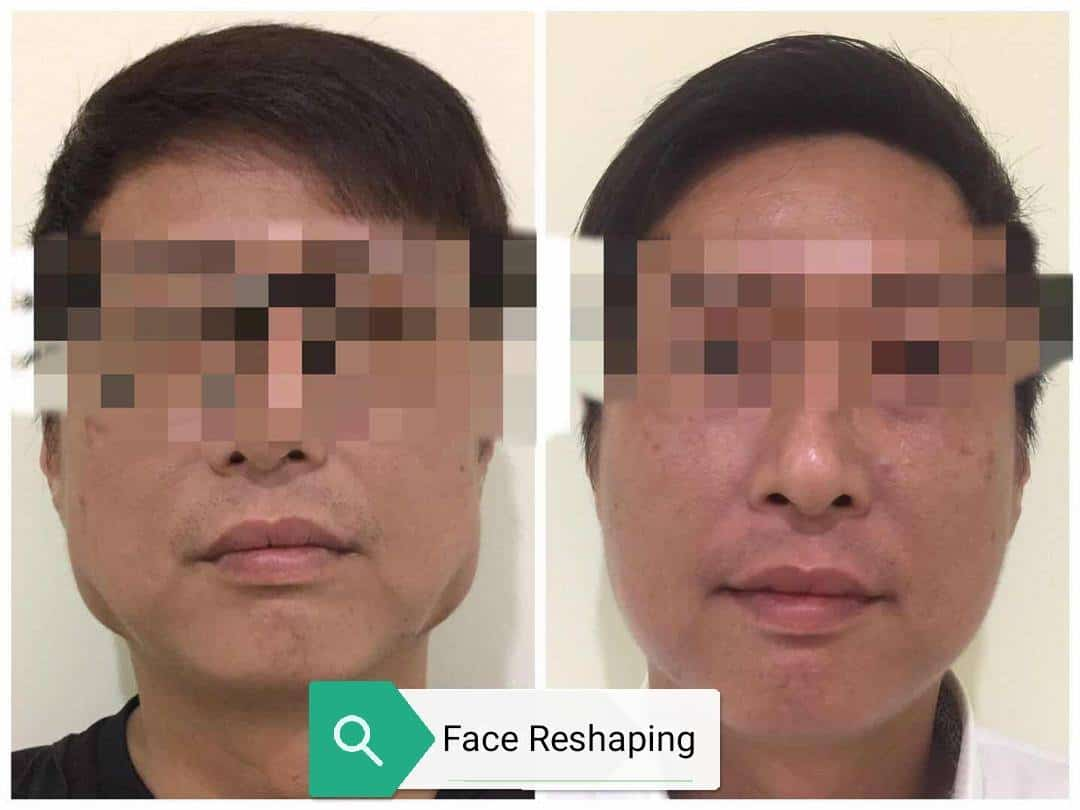 Face Reshaping